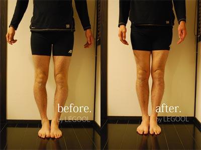 32歳 男性 「O脚が改善し、ヒップも上がった」