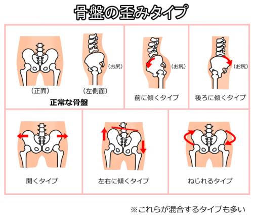 骨盤の歪みタイプ