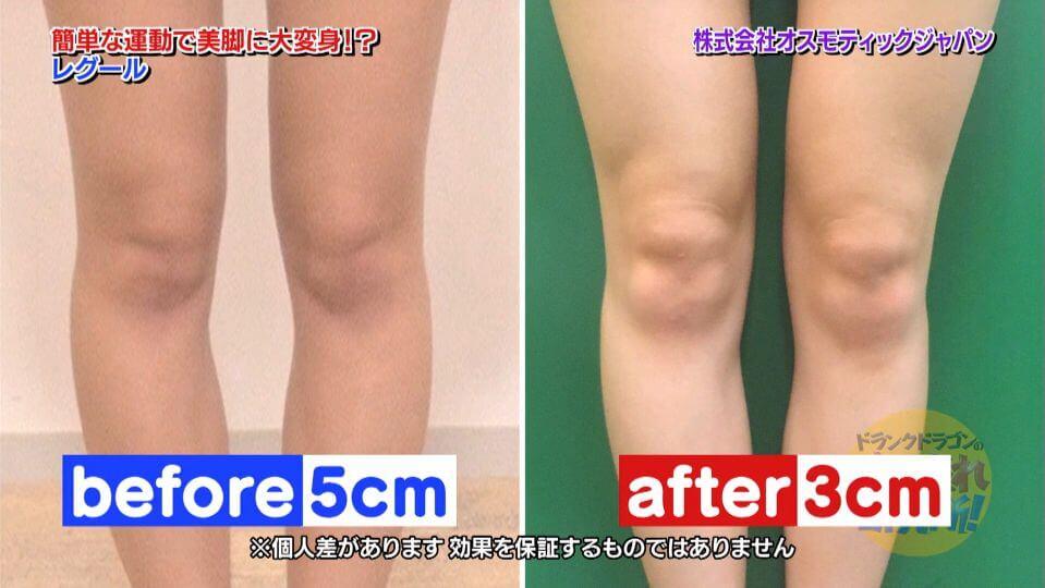 レグールで一条エリナ(モデル)のO脚2cm改善結果