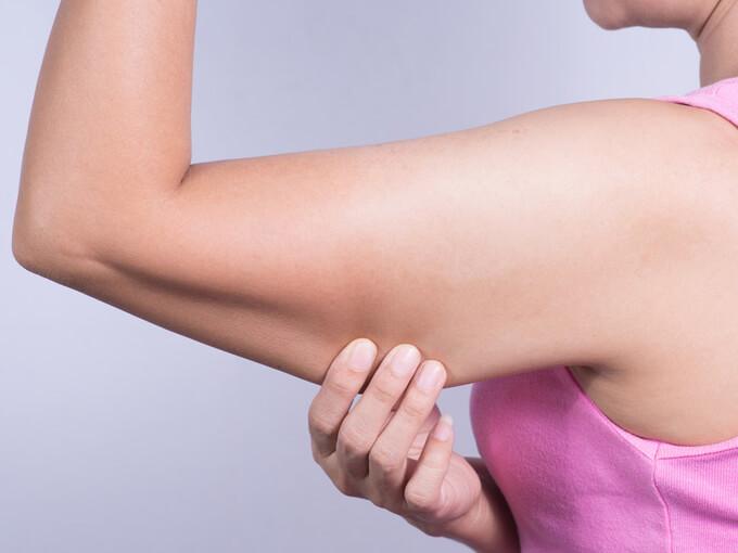 二の腕のたるみ改善