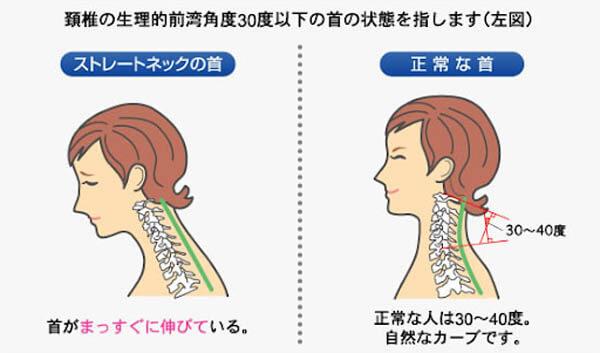 頚椎のS字曲線
