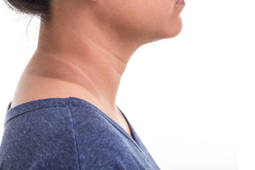 女性の首のたるみ解消