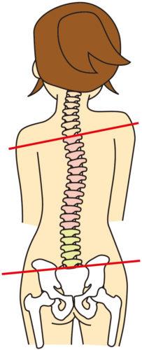 骨盤の歪みから肩の高さまで変わる