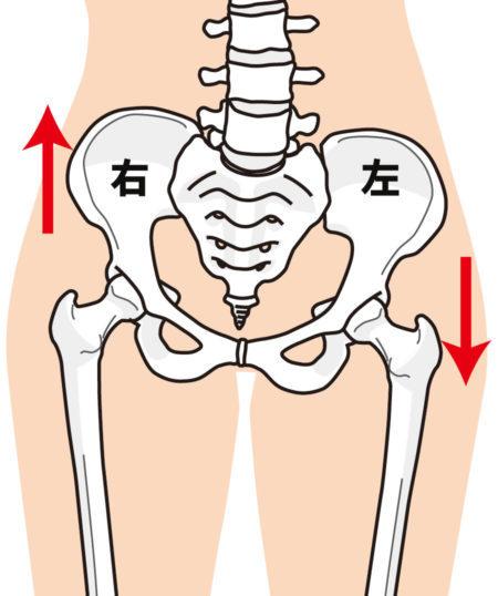 骨盤の歪みで体が傾く